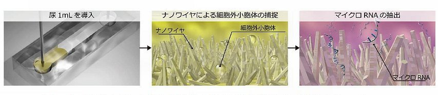 ナノワイヤを用いた尿中細胞外小胞体の捕捉とそこに内包されるマイクロRNA(名大提供)